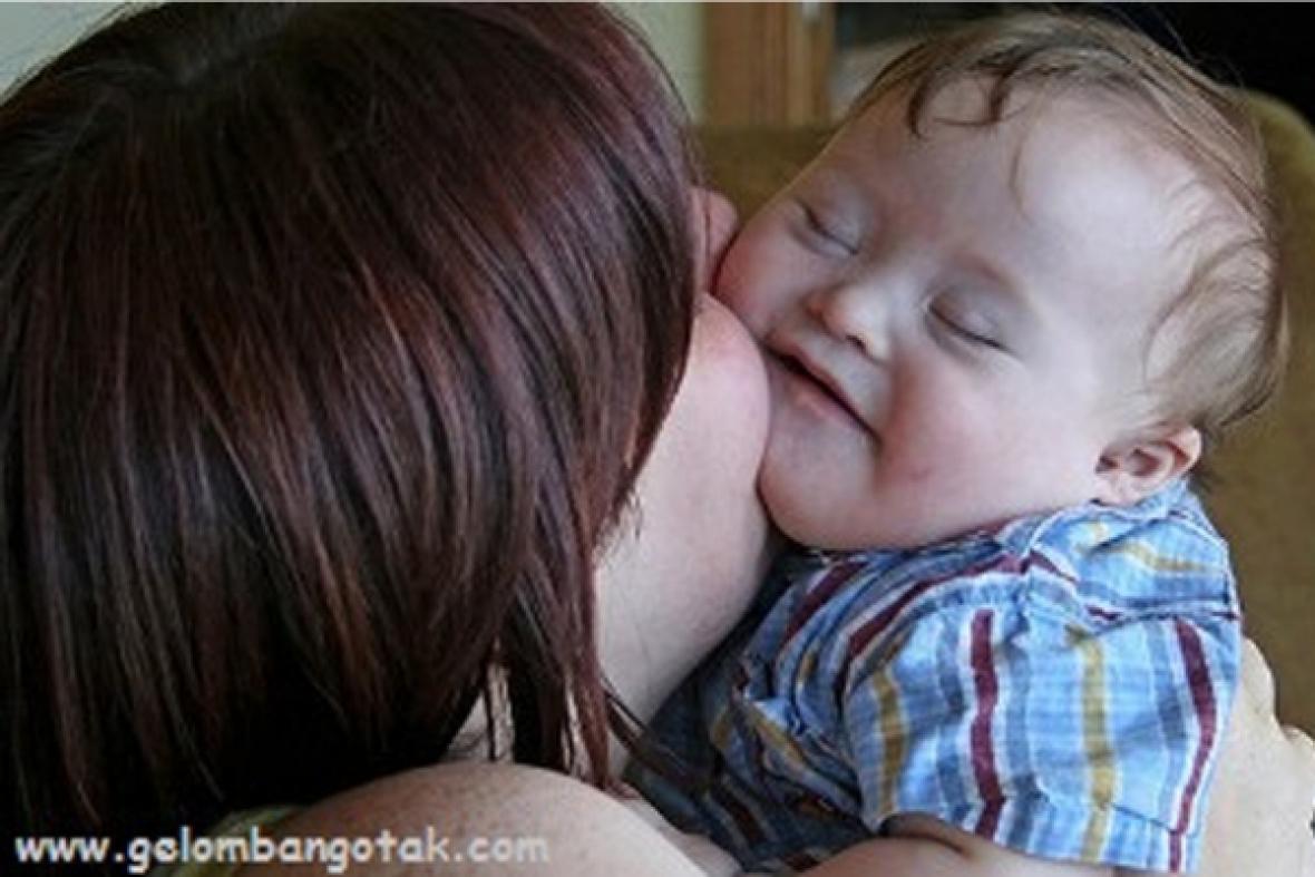 Allaiter un bébé porteur de trisomie 21